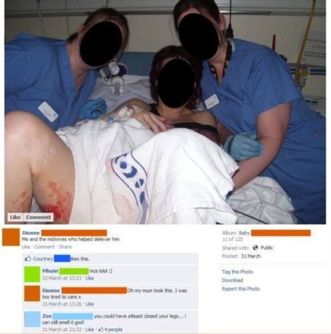 Post labor photo that shows too much