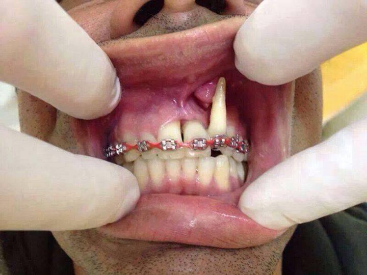 Do it yourself braces archives dailypedia expert speaks out on diy dental braces solutioingenieria Choice Image